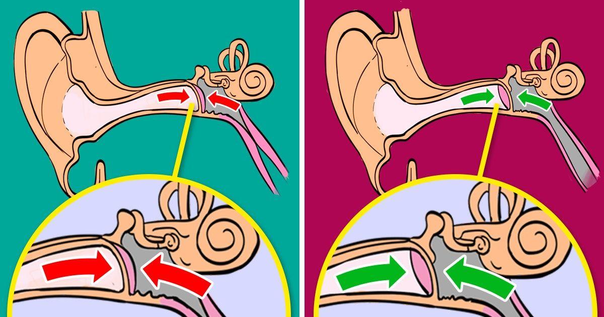 Как избежать боли в ушах во время перелета
